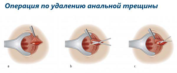 Реабилитация после иссечения анальных трещин