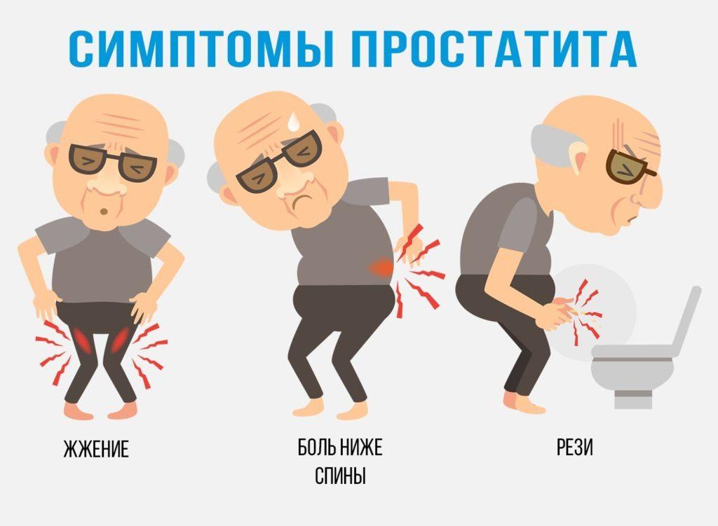 Лечение простатита в Киеве, стоимость - Клиника Md Clinica