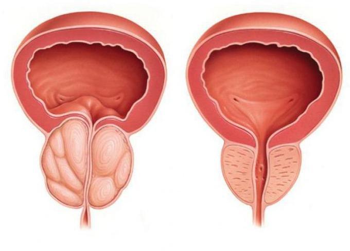 обзор средств от простатита